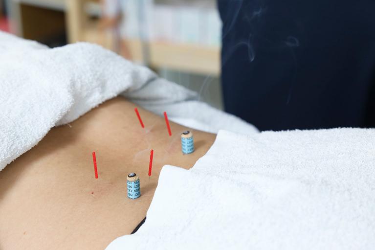 鍼灸治療の効果